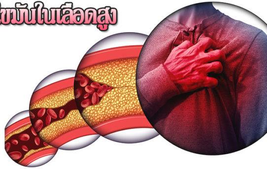 ไขมันในเลือดสูงอันตรายไหม แล้วเสี่ยงกับโรคอะไรบ้าง